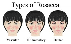 April is rosacea awareness month and we have some top products to help you out